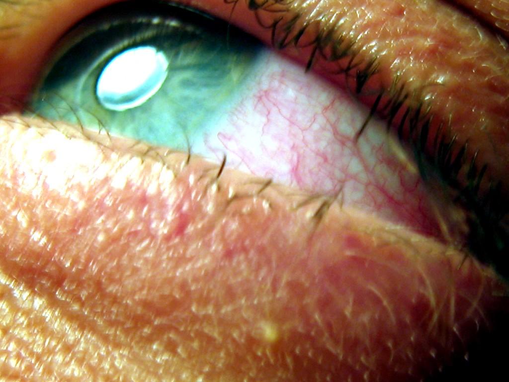 Jak prawidłowo zadbać o swoje oczy?